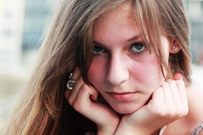 Acne Rosacea: Cause, Sintomi, Diagnosi e Cura