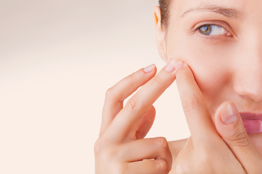 Acne Comedonica: come curarla efficacemente