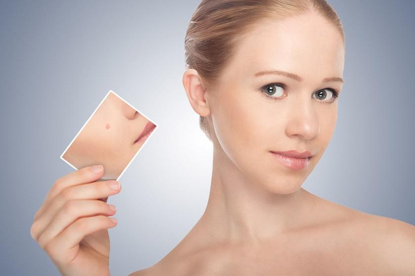 L'acne: un processo che si può sconfiggere con rimedi efficaci