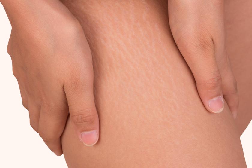 Smagliature Rosse: Cause, Prevenzione e Rimedi