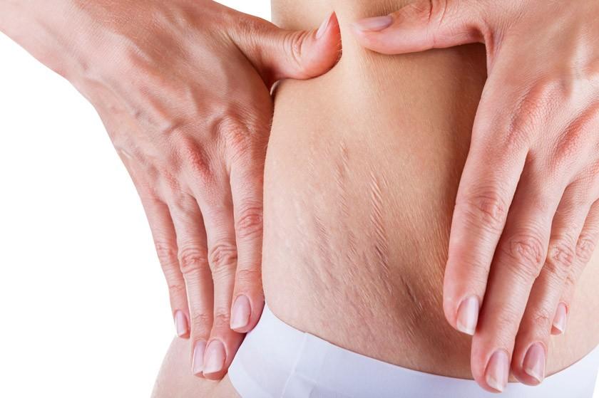 Come prevenire e trattare le Smagliature con Strecth Marks Multi-Action Cream di Miamo