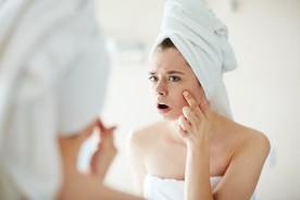 Combattere l'acne con positività? Ce lo insegnano le star